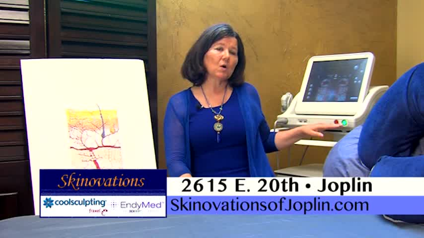 Skinovations - Ultherapy - FAQ_20160902142605
