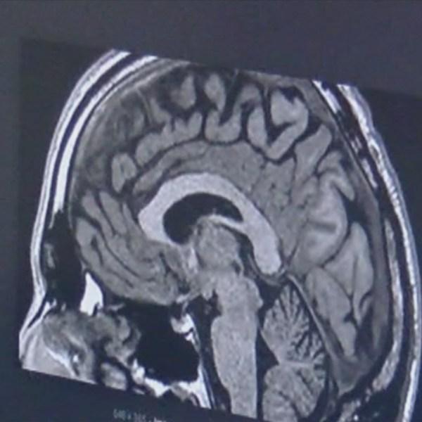 FMF: Alzheimer's
